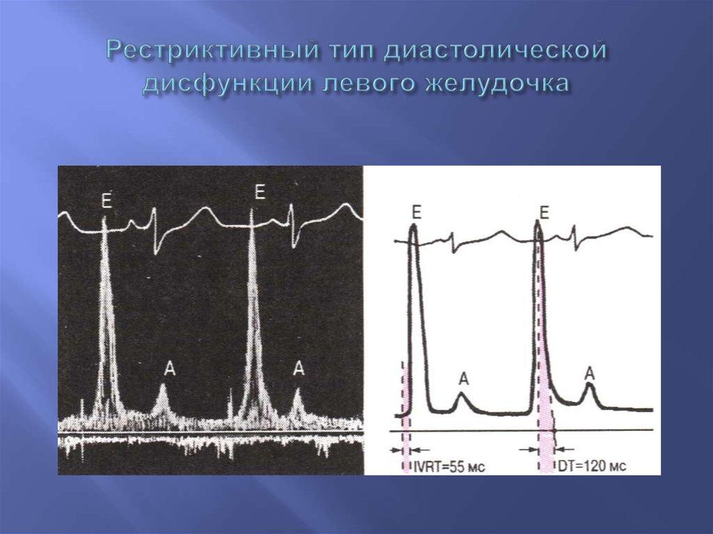 Нарушение диастолической функции по 1 типу