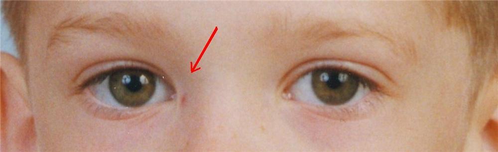 Что такое эпикантус – признаки и лечение (фото)