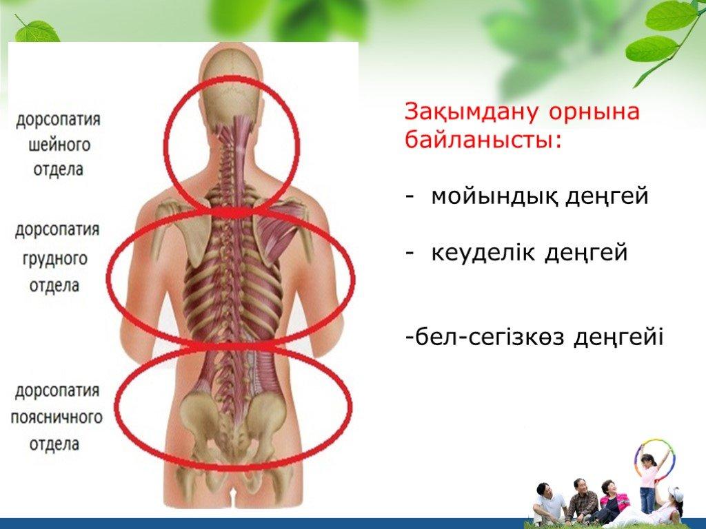 Дорсопатия шейного отдела позвоночника: симптомы, лечение, упражнения
