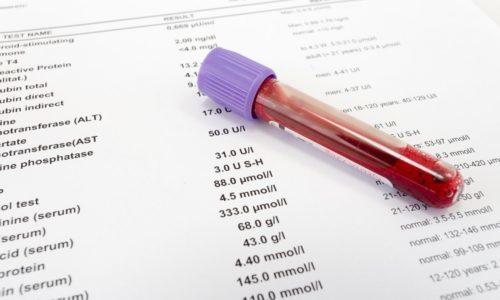 Цистит. симптомы, причины, лечение