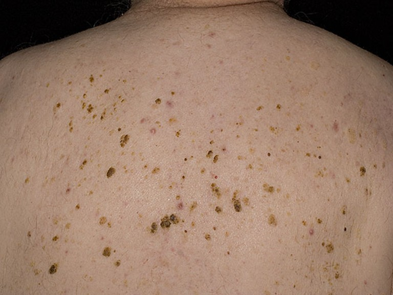 Гиперкератоз кожи лица — ороговевшая ткань не приговор! подбираем правильное лечение