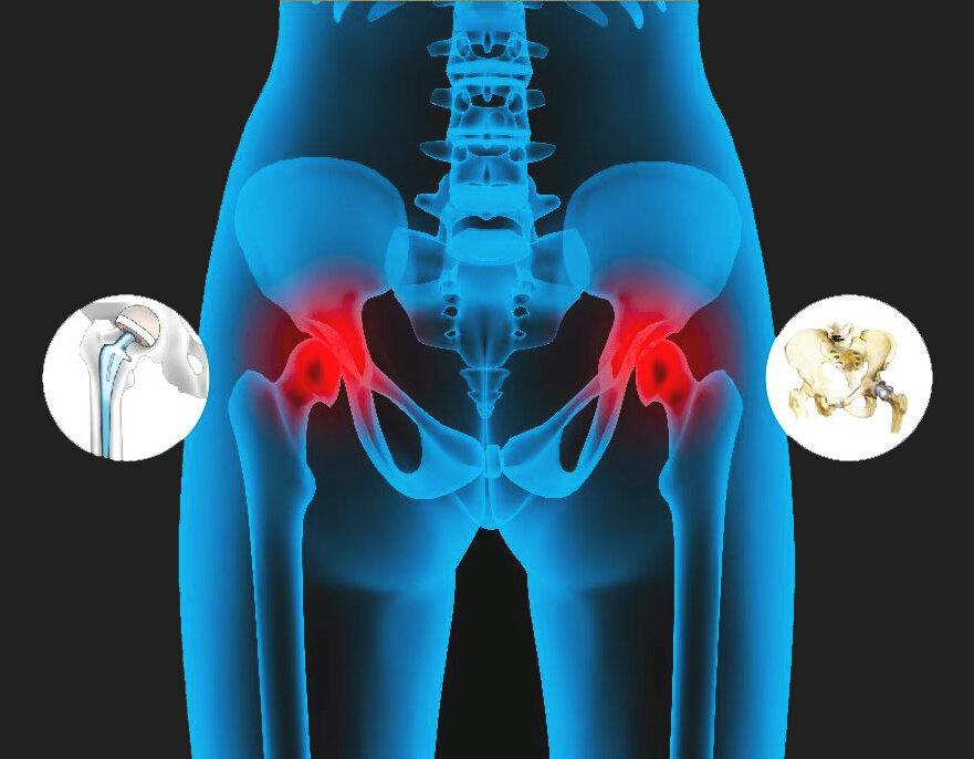 Остеоартроз – что это такое, симптомы и лечение