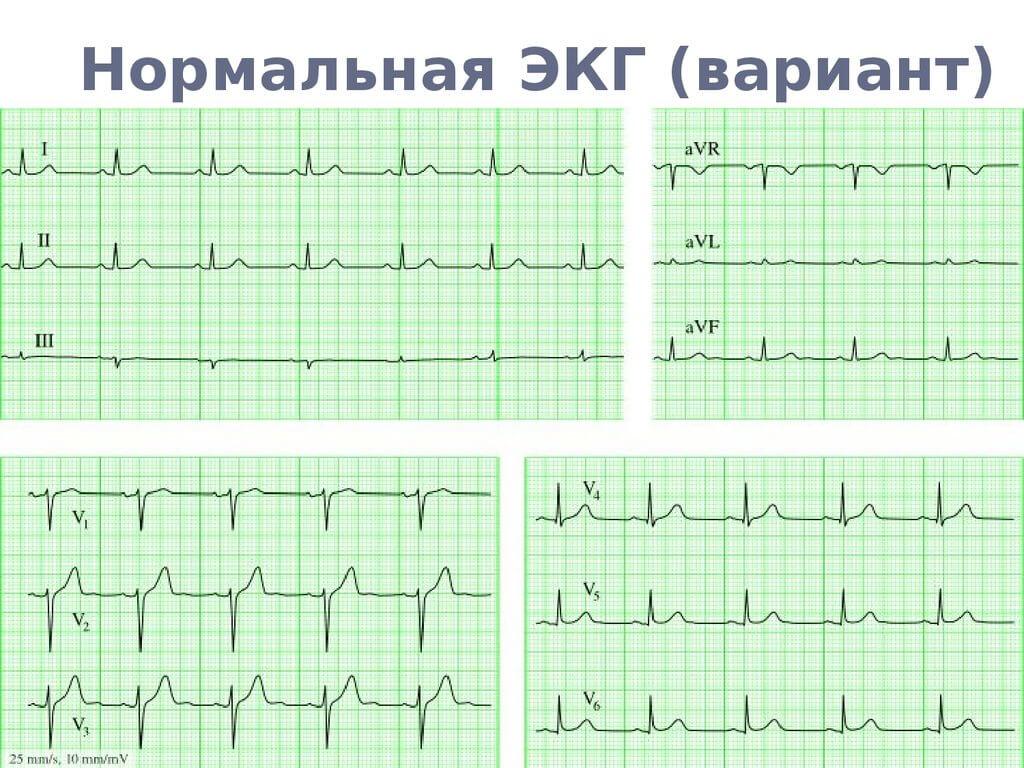 Электрокардиография — википедия. что такое электрокардиография