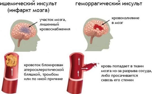 Стволовой инсульт: симптомы, лечение, прогноз | инсульту нет! [нейрореабилитация]