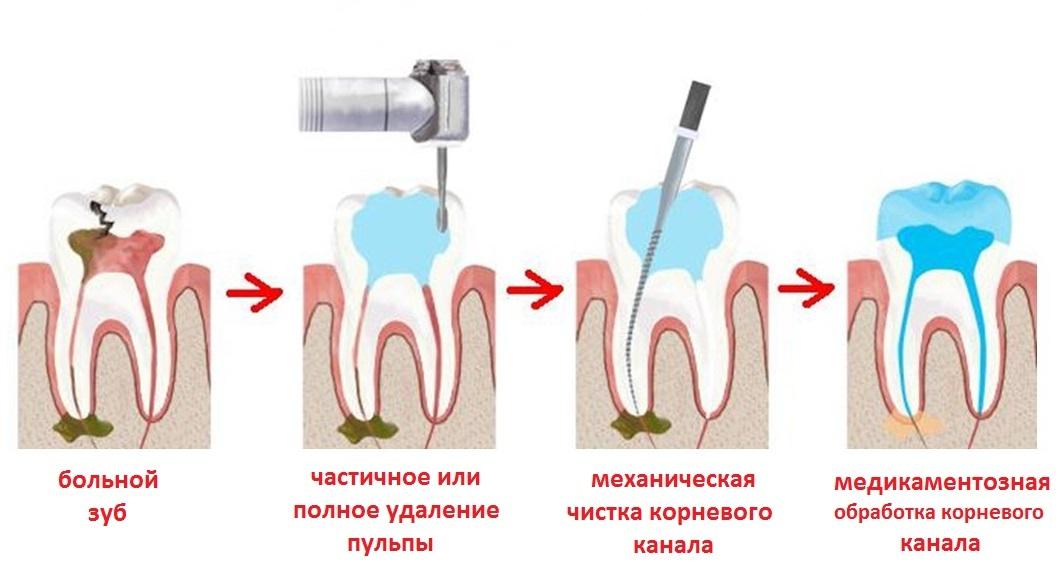 Пульпа зуба - что это такое, методы лечения пульпита