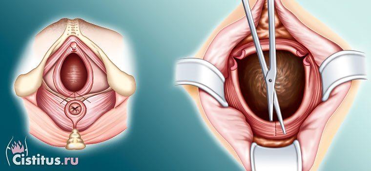 Эпизиотомия – что это такое: по каким показаниям и зачем делают процедуру при родах