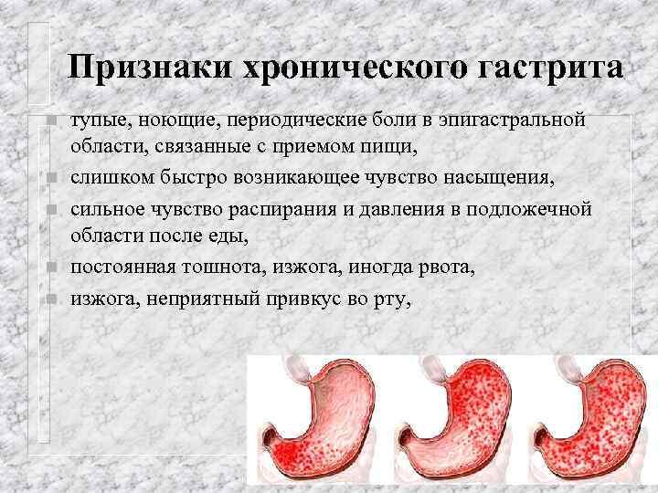 Все о гастрите: виды, симптомы, лечение и питание - webmedinfo.ru