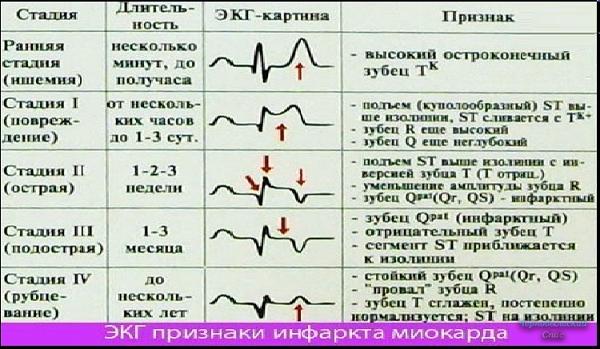Расшифровка экг, как самостоятельно расшифровать кардиограмму сердца у взрослых