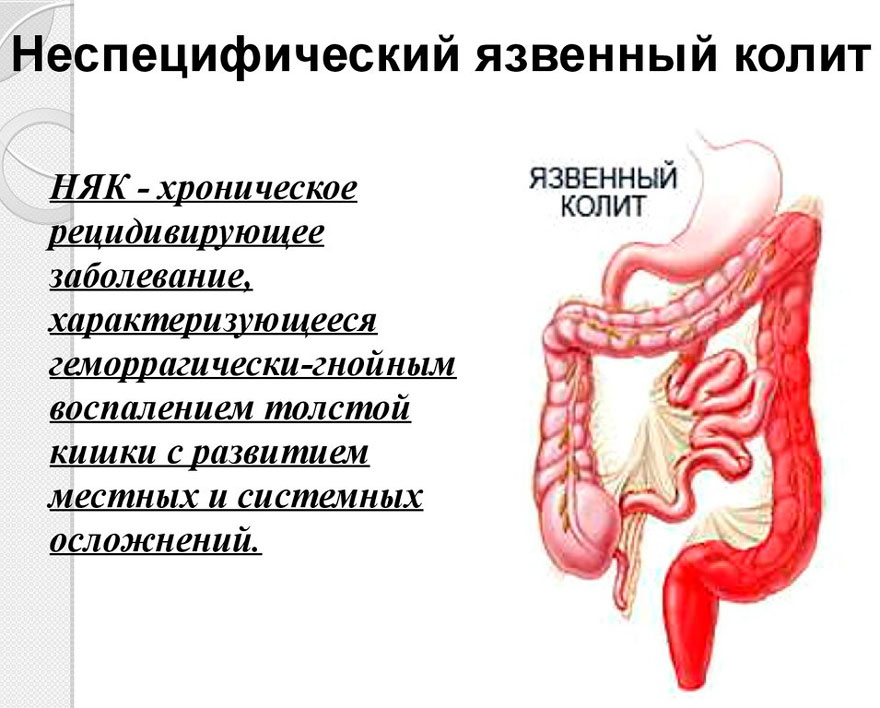 Колит - что это такое, причины, симптомы, лечение, диагностика, прогноз