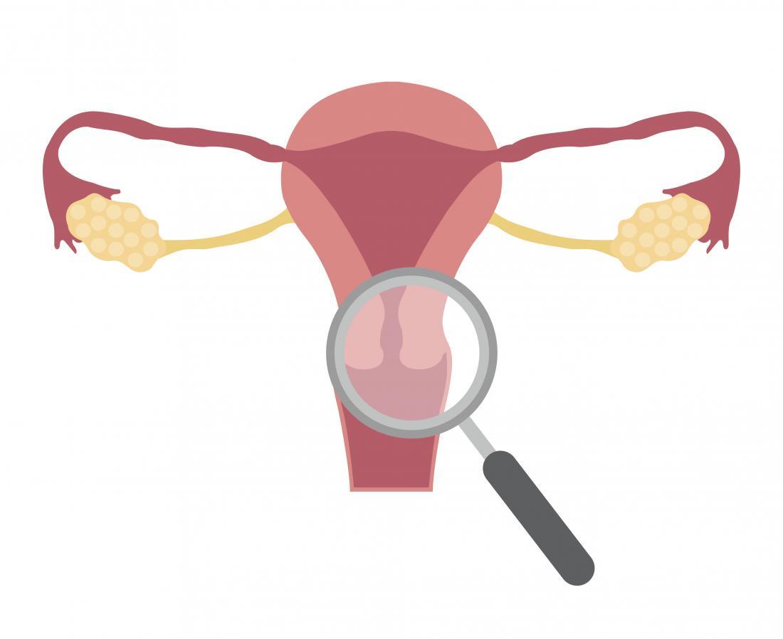 Эрозия шейки матки: что это такое, причины, симптомы, диагностика, лечение и профилактика