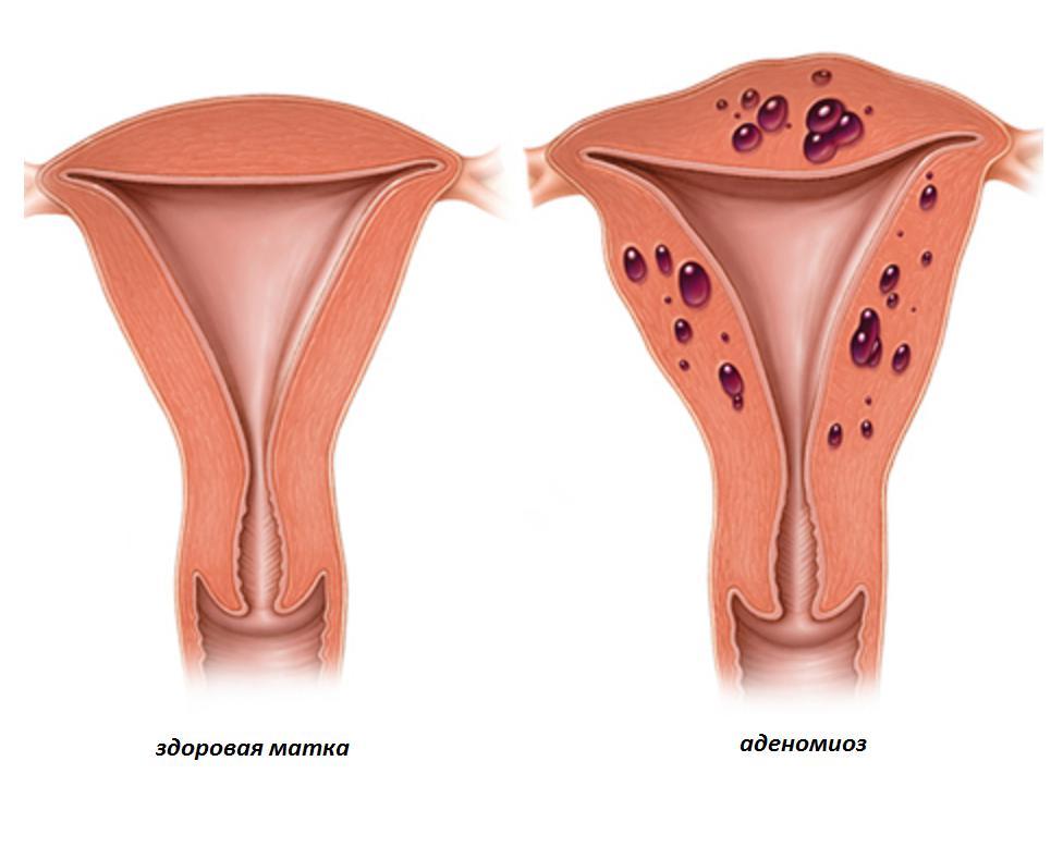 Миома матки: симптомы и признаки. размеры для операции и прогноз для жизни