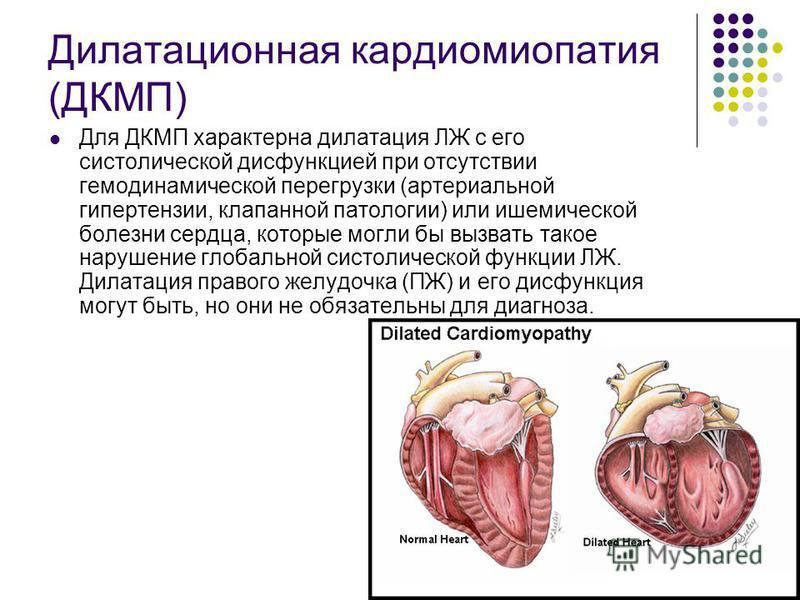 Дилатационная кардиомиопатия - симптомы и лечение. журнал медикал