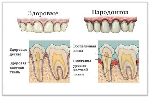 Пародонтоз: причины, симптомы, диагностика и лечение в москве