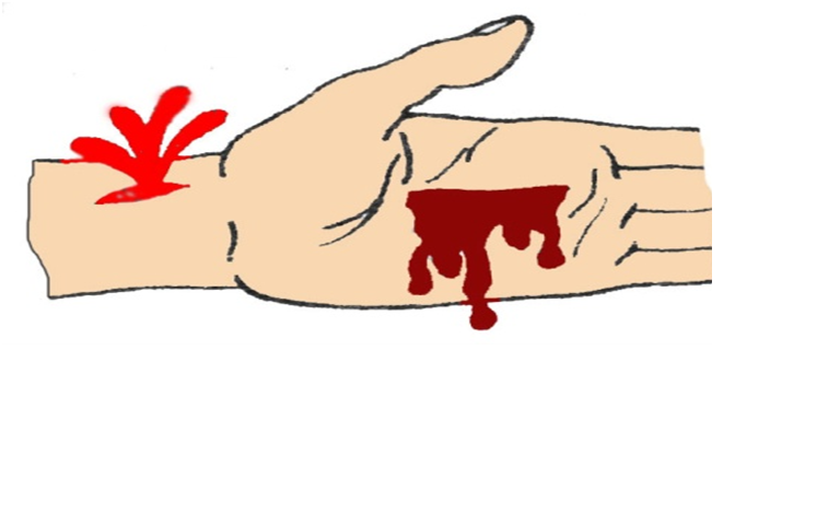 Кровотечение