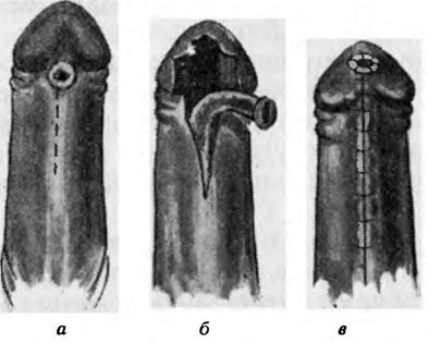 Где находится уздечка у мужчин - что такое, короткая, обрезание