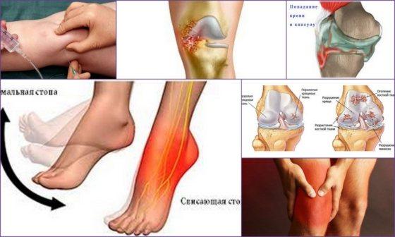 Суставы человека. опорно-двигательный аппарат и подробное описание суставов в анатомическом атласе онлайн.