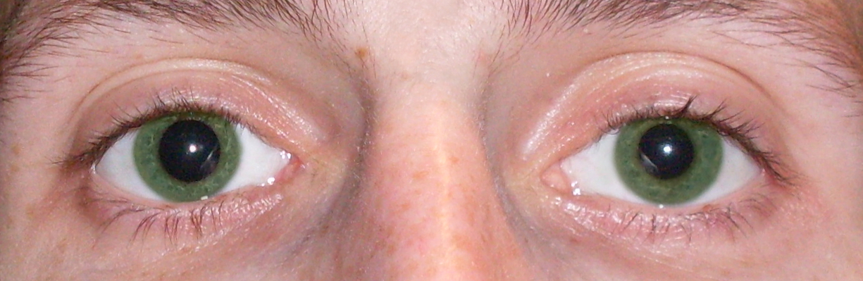 Анизокория при каких заболеваниях - неврологияonline