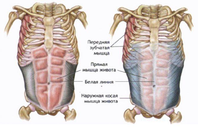 Диастаз прямых мышц живота после родов - что это такое и как от него избавиться?