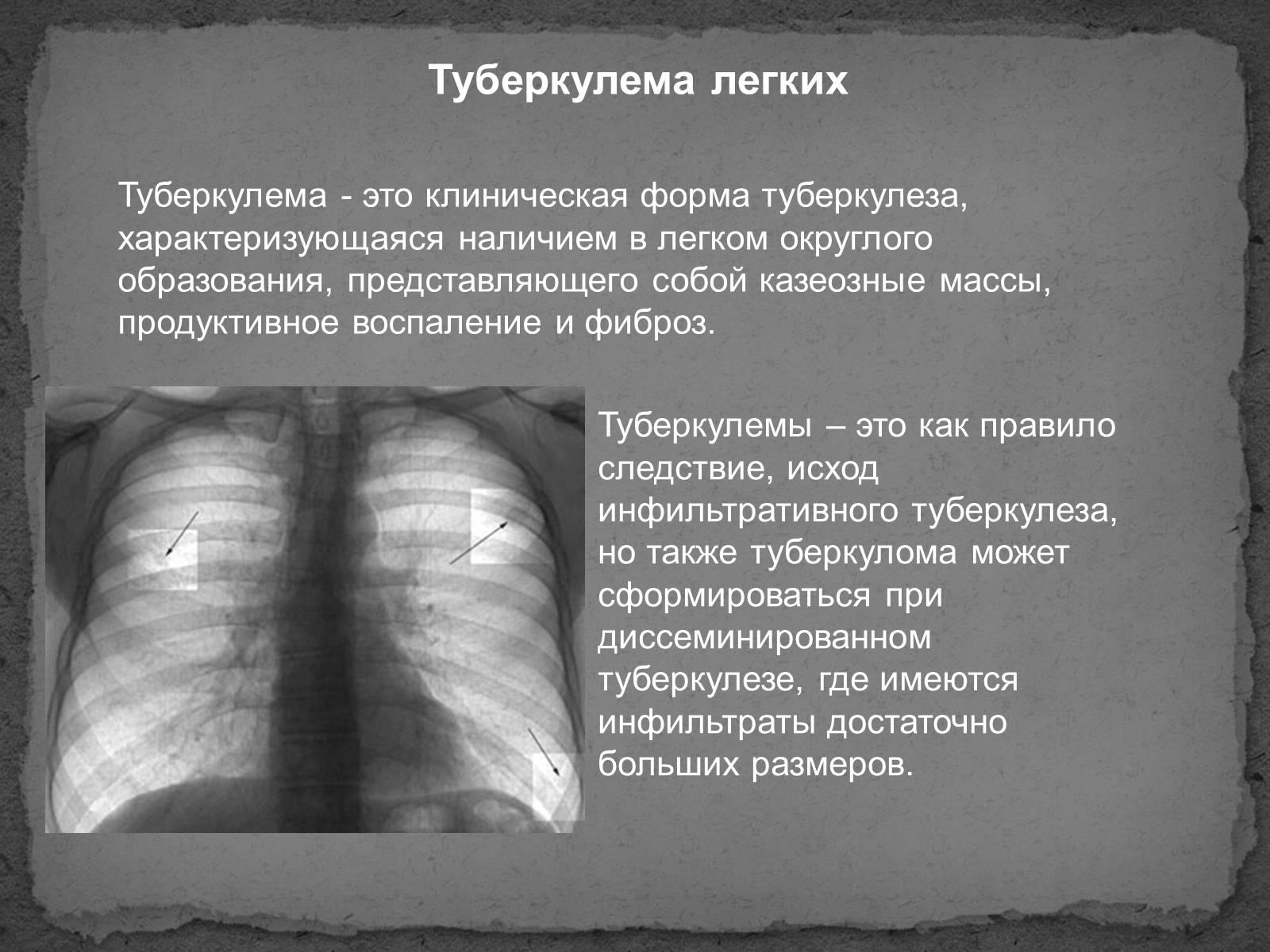Что такое мета туберкулез легких