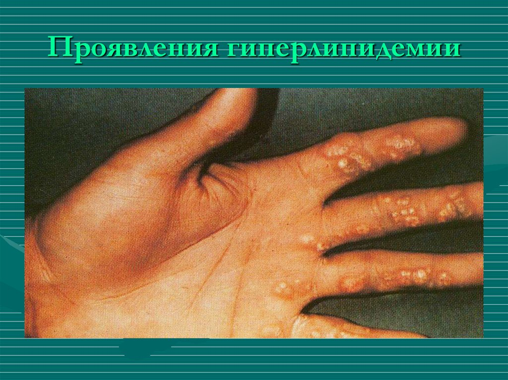 Гиперлипопротеинемия ii типа, лечение, причины, симптомы,  профилактика. , лечение, причины, симптомы,  профилактика.