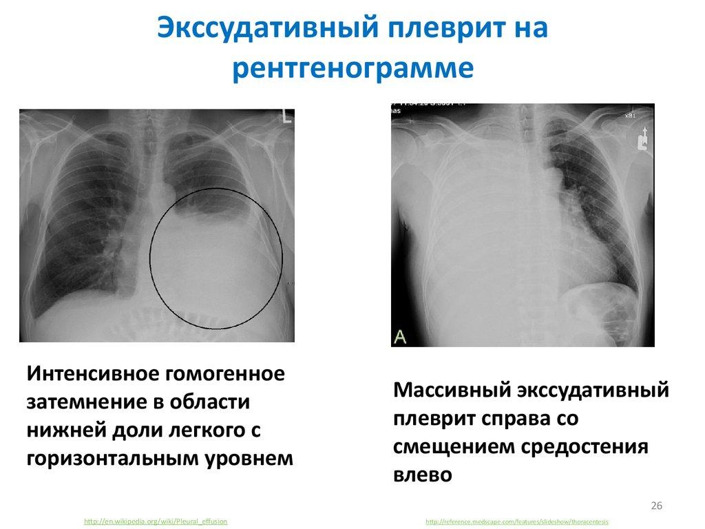 Почему развивается и чем опасен гидроторакс лёгких?