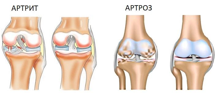 Периферические суставы это какие — лечение суставов