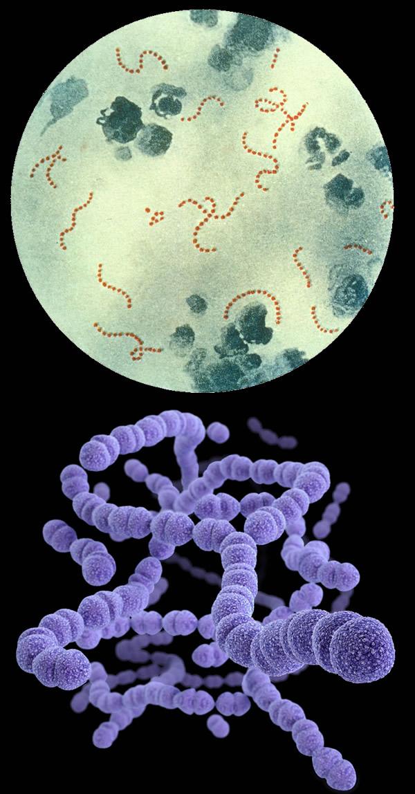 Стрептококковая инфекция у детей и взрослых - причины возникновения, анализы и лекарственная терапия