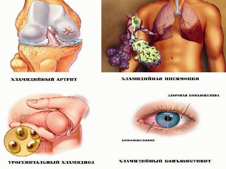 Гонорея у мужчин: симптомы, осложнения и лечение