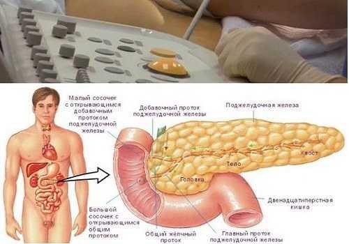 Липоматоз поджелудочной железы 1 степени: симптомы и способы лечения