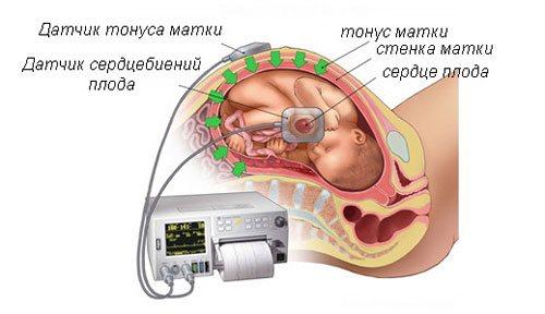 Тонус матки во время беременности: что скрывается за одним из самых распространенных диагнозов?