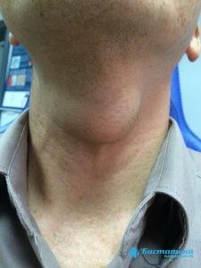 Шишковидная железа: строение, функции и заболевания эпифиза