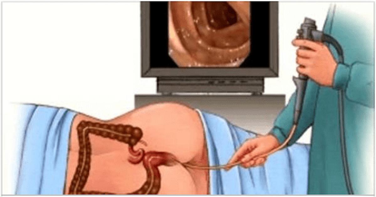 Что лучше: кт или колоноскопия кишечника — преимущества и недостатки виртуальной колонографии и мскт