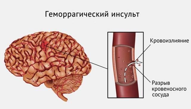 Стволовой инсульт: симптомы, лечение, последствия, прогноз выздоровления