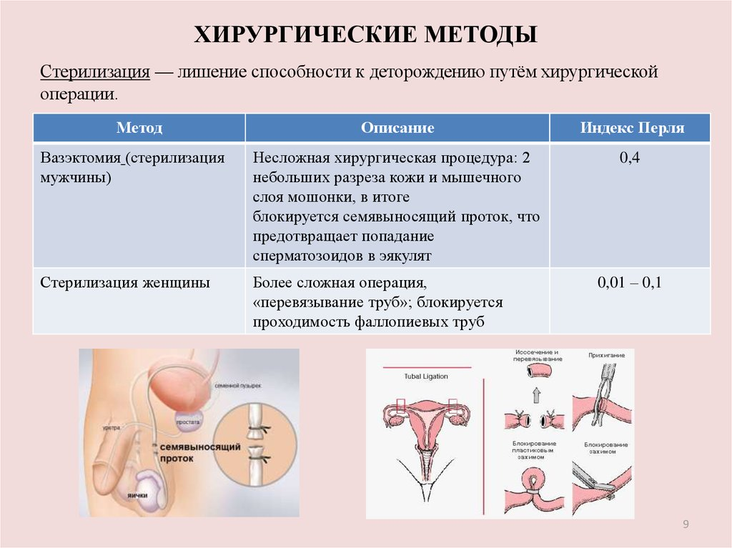 Вазэктомия у женщин