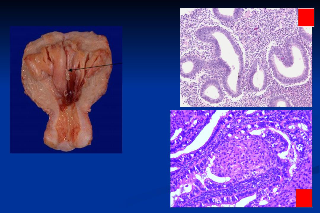 Гиперплазия эндометрия - лечение, симптомы, признаки, причины