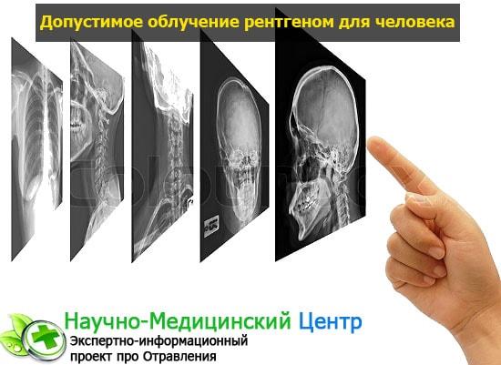 Рентгеновское излучение: вред и последствия действия на человека