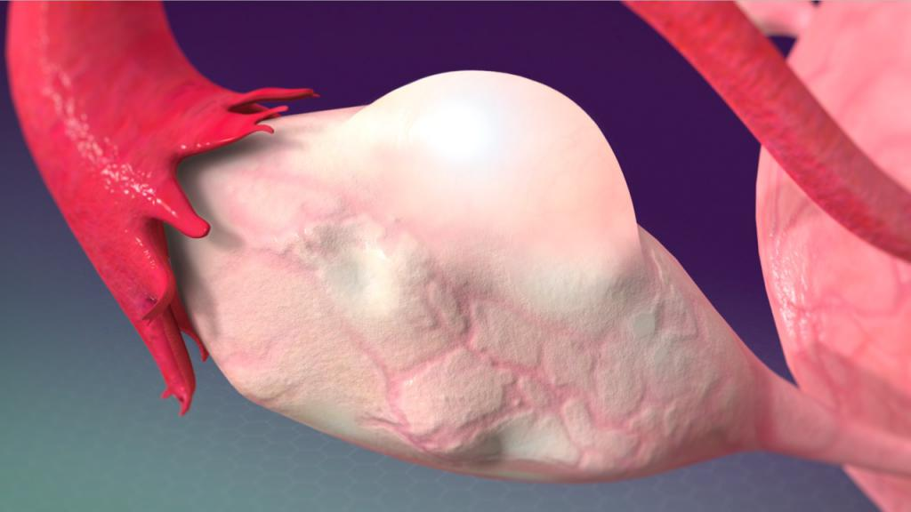 Киста яичника: лечение, симптомы, причины возникновения и диагностика