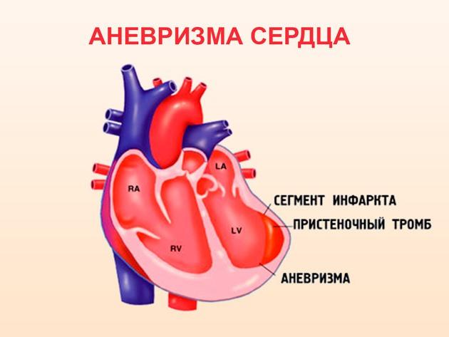 Аневризма сердца: что это такое, симптомы и выбранное лечение