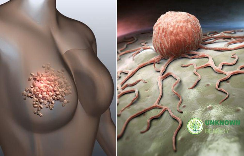 Онкология: признаки онкологических заболеваний, причины, виды и лечение