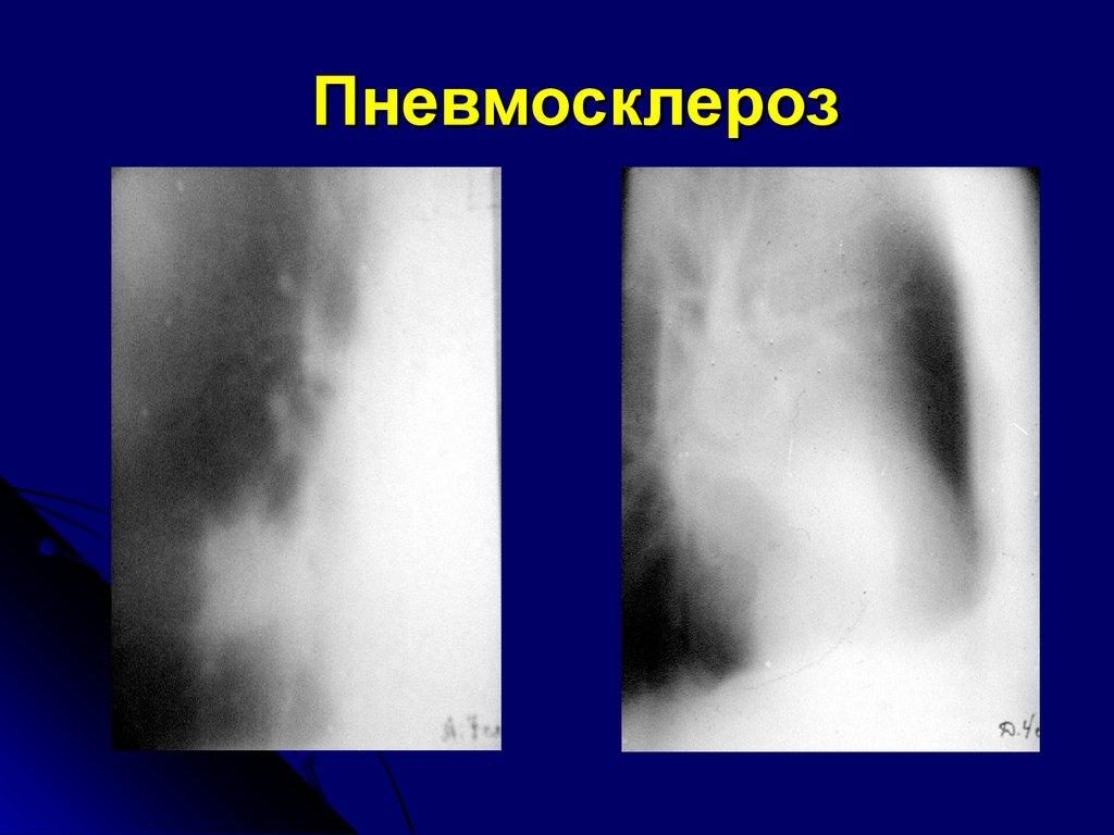 Пневмосклероз легких - что это такое: лечение и симптомы