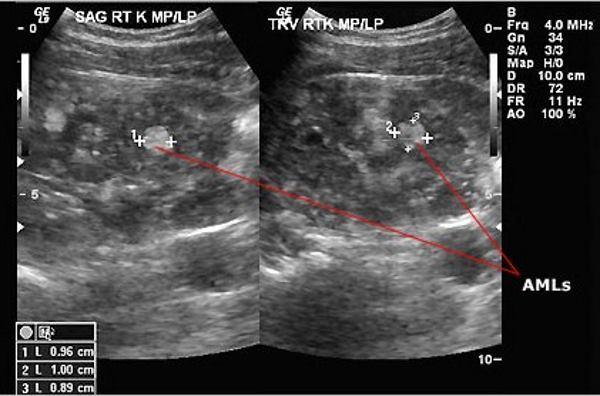 Что входит в узи брюшной полости: исследование и расшифровка - kdmc