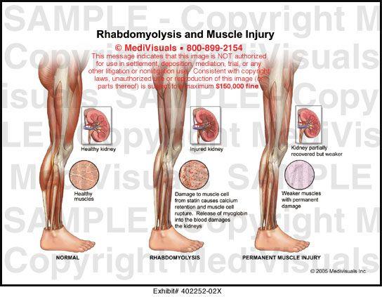 Рабдомиолиз – симптомы и лечение, фото и видео