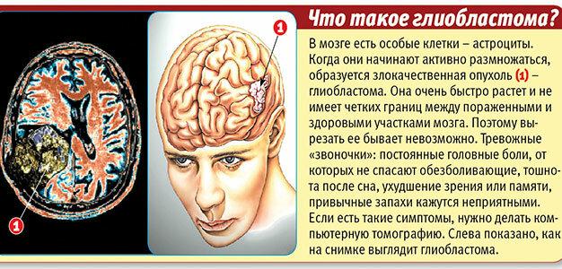 Глиобластома головного мозга | причины, степени, симптомы, мкб 10