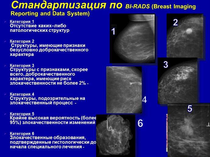 Bi-rads - 2 - вопрос маммологу - 03 онлайн