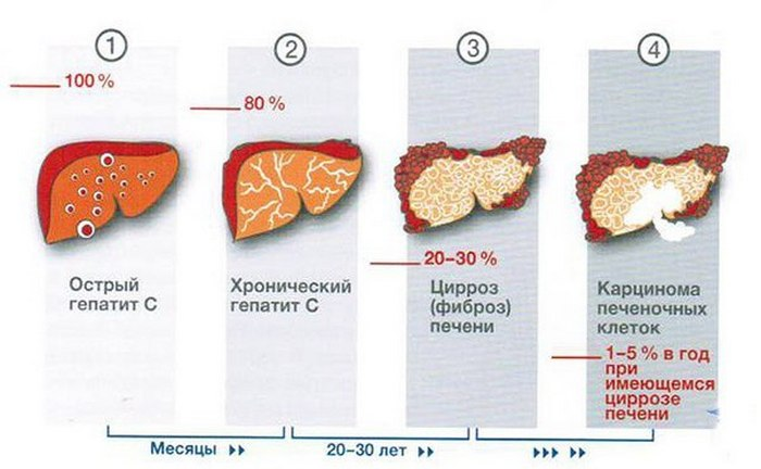 Гепатит а и гепатит б: что это такое и как передается