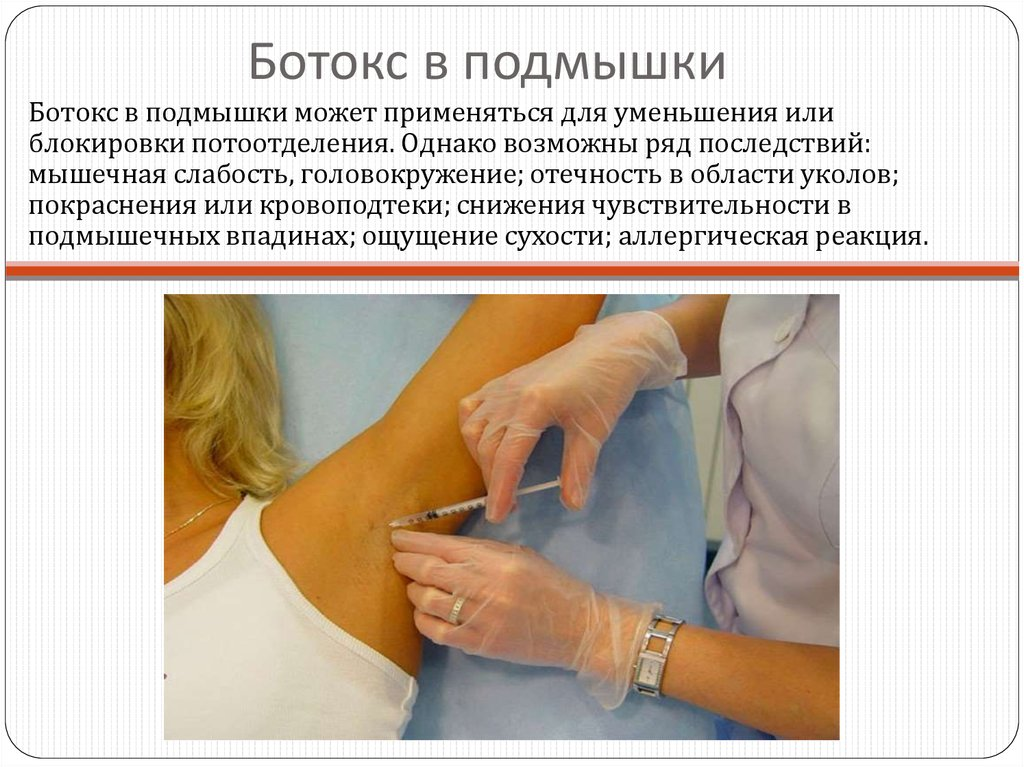 Профилактика и лечение гипергидроза
