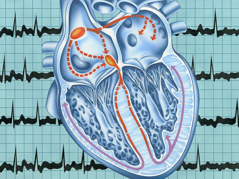Что такое аритмия сердца и как ее лечить?