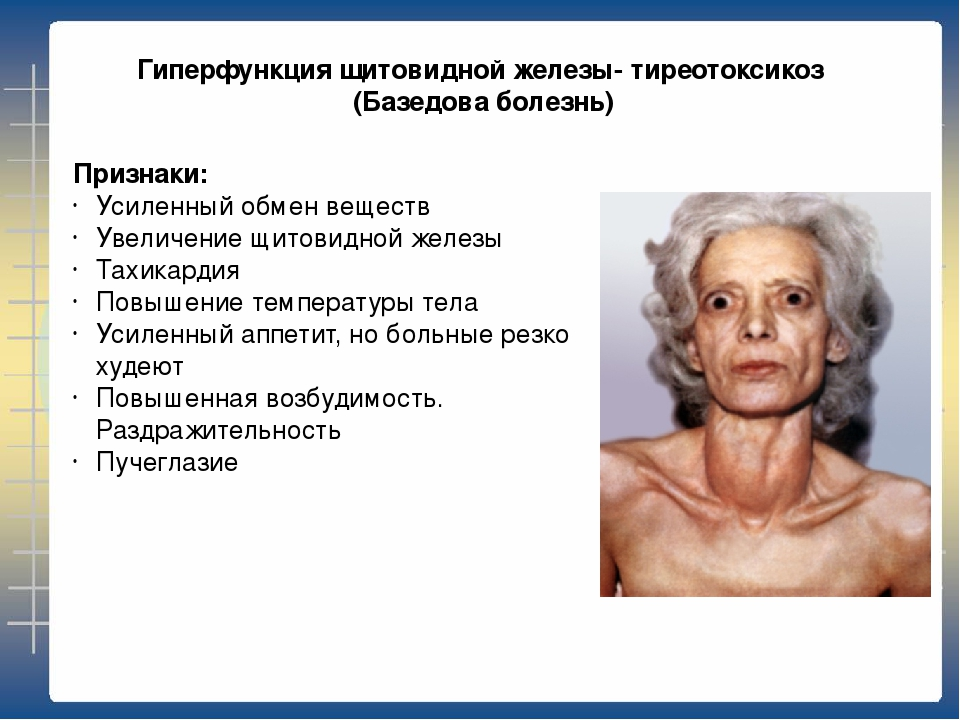 Признаки и симптомы тиреотоксикоза