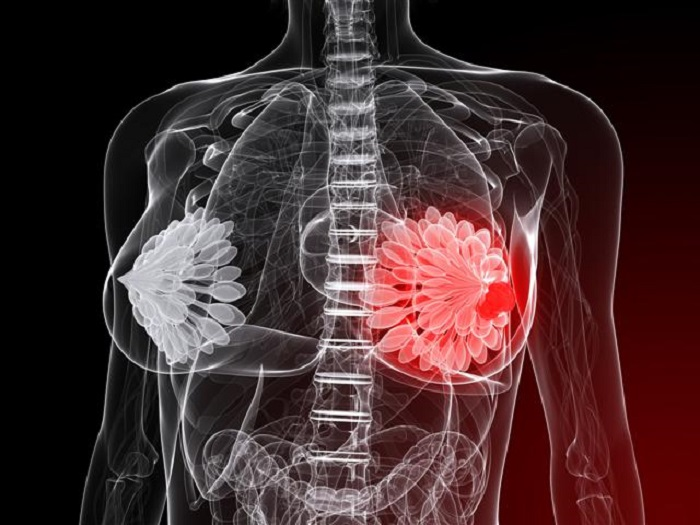Мастопатия: причины, симптомы, диагностика и лечение