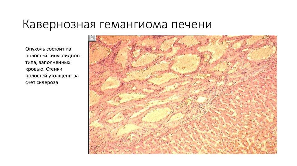 Гемангиома печени – что это такое, причины, симптомы и лечение     gastrogid.ru